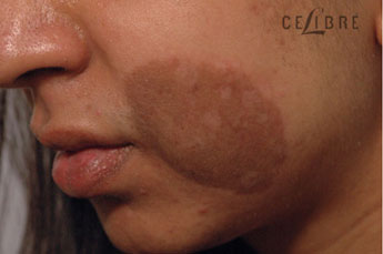 Birthmark Removal Before Pictures 7