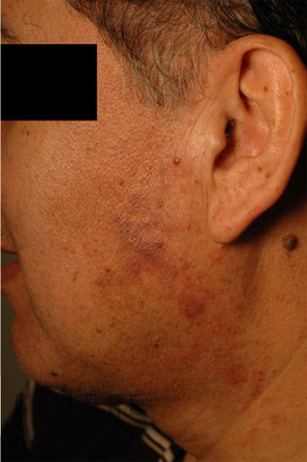 Before And After Vascular Birthmark Removal 3