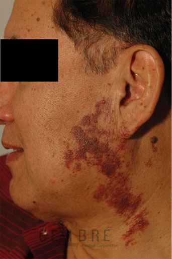 Vascular Birthmark Removal Before Pictures 3