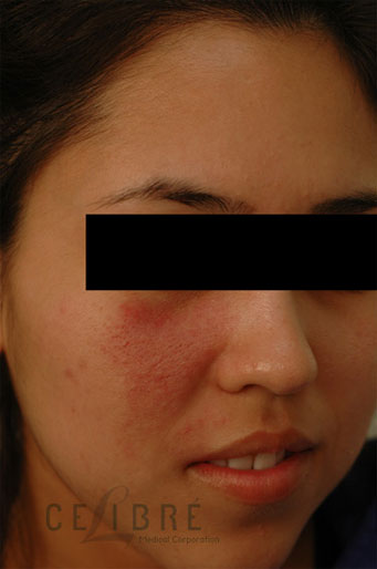 Vascular Birthmark Removal Before Pictures 4