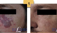 Vascular Birthmark Removal Before and After Pictures Sm 1