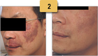 Vascular Birthmark Removal Before and After Pictures Sm 2