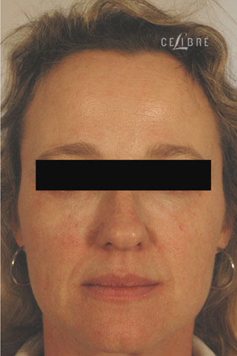 Forehead Botox After Pictures 10 by Celibre Medical Corporation