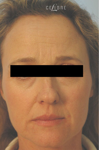 Forehead Botox Before Picture 10 by Celibre Medical Corporation