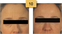 Botox Before and After Pictures Sm 10