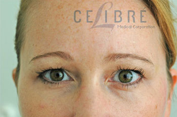 Brow Lift Botox After Pictures 1 by Celibre Medical Corporation