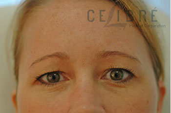 Brow Lift Botox Before Pictures 1 by Celibre Medical Corporation