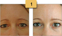 Brow Lift Botox Before and After Pictures Sm 1