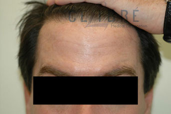 Forehead Lines Botox After Pictures 2 by Celibre Medical Corporation