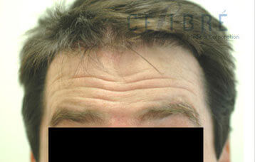 before and after botox for deep forehead wrinkles