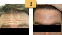 Botox Before and After Forehead Pictures Sm 2