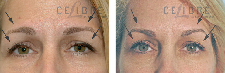 Botox Injections Before And After Pictures 3