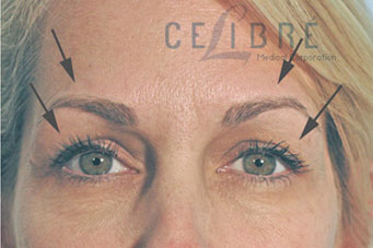 Brow Lift After Botox Picture 3 by Celibre Medical Corporation
