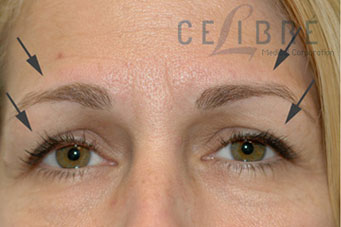 Brow Lift Before Botox Pictures 3 by Celibre Medical Corporation