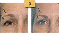 Botox Before and After Brow Lift Pictures Sm 3