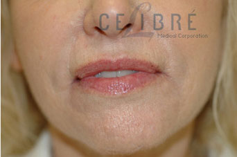 Pebble Chin After Botox Picture 4 by Celibre Medical Corporation