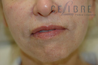 Pebble Chin Before Botox Picture 4 by Celibre Medical Corporation