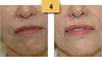 Botox Before and After Pebble Chin Pictures Sm 4