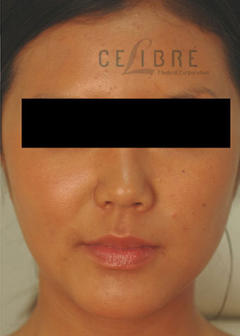 Masseter After Botox Picture 5 by Celibre Medical Corporation