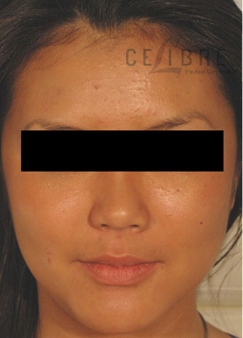 before and after botox masseter