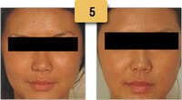 Botox Before and After Masseter Pictures Sm 5