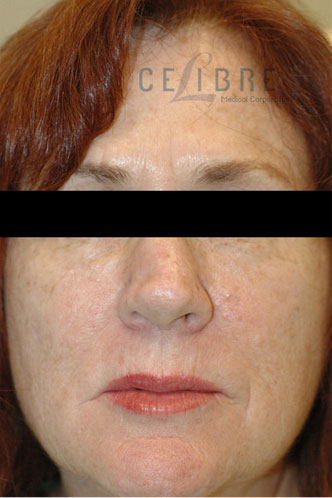 Frown Lines After Botox Picture 6 by Celibre Medical Corporation