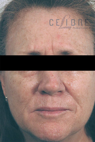 Frown Lines Before Botox Picture 6 by Celibre Medical Corporation
