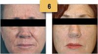 Botox Before and After Frown Lines Pictures Sm 6