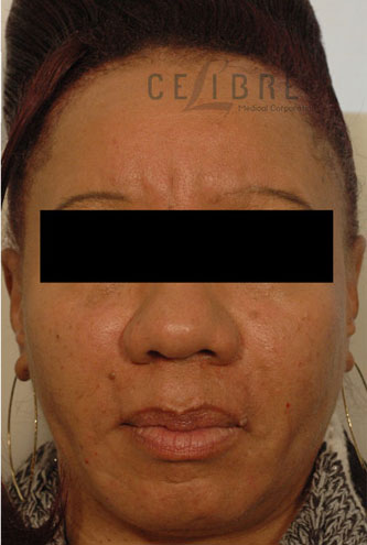 Deep Frown Lines After Botox Pictures 7 by Celibre Medical Corporation