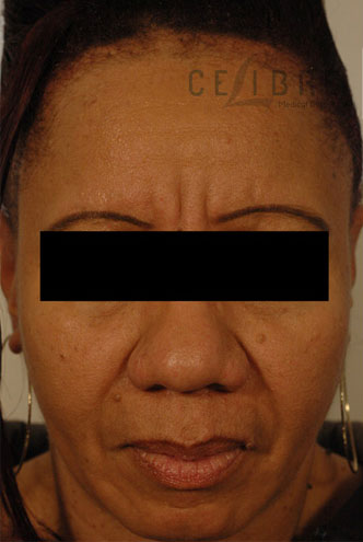 Deep Frown Lines Before Botox Picture 7 by Celibre Medical Corporation