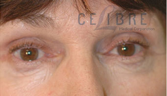 Eye Wrinkles After Botox Picture 8 by Celibre Medical Corporation