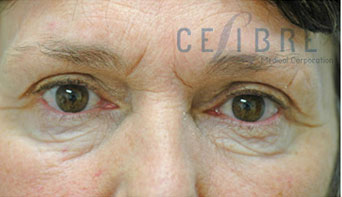Eye Wrinkles Before Botox Picture 8 by Celibre Medical Corporation