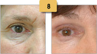 Botox Before and After Eye Wrinkles Pictures Sm 8