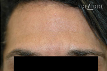 Forehead Lines After Botox Picture 9 by Celibre Medical Corporation