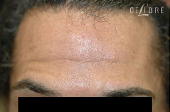 before and after botox photos for forehead lines