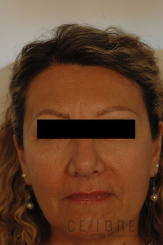 Brow Lift After Dysport Injections Picture 2 by Celibre Medical Corporation
