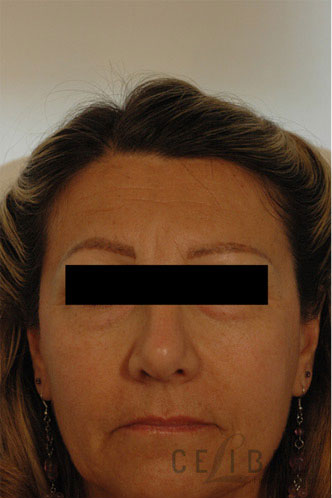 Brow Lift Before Dysport Injections Picture 2 by Celibre Medical Corporation