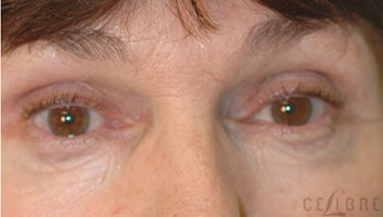 Dysport Injections After Pictures 9