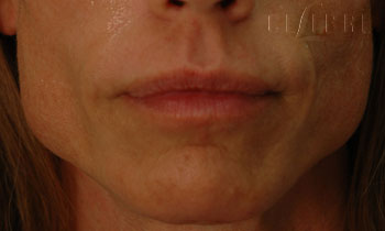 Masseter Before Dysport Injections Picture 11