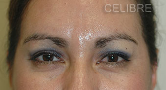 Glabella After Dysport Injections Picture 12