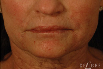 Juvederm Injections After Pictures 10