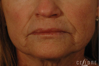 Juvederm Injections Before Pictures 10