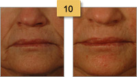 Juvederm Before and After Pictures Mouth Rejuvenation Sm 10