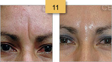 Glabella Before and After Juvederm Sm 11