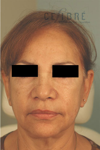 Juvederm Injections After Pictures 1