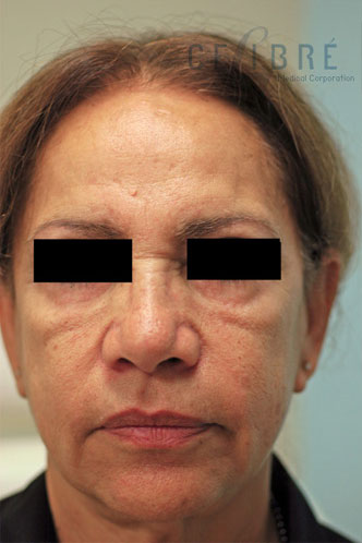Juvederm Injections Before Pictures 1
