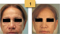 Juvederm Before and After Cheeks and Eyes Pictures Sm 1