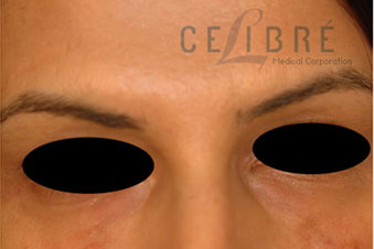 Juvederm Injections After Pictures 2