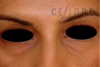 Juvederm Injections Before Pictures 2