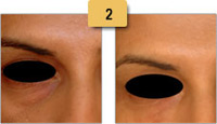 Juvederm Before and After Dark Circles Pictures Sm 2